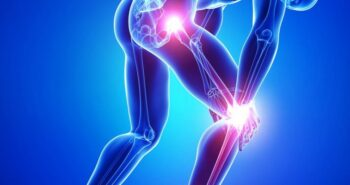 Orthopedic-Doctor-in-India