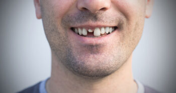 Tooth restoration Broken teeth are often pulled too quickly!